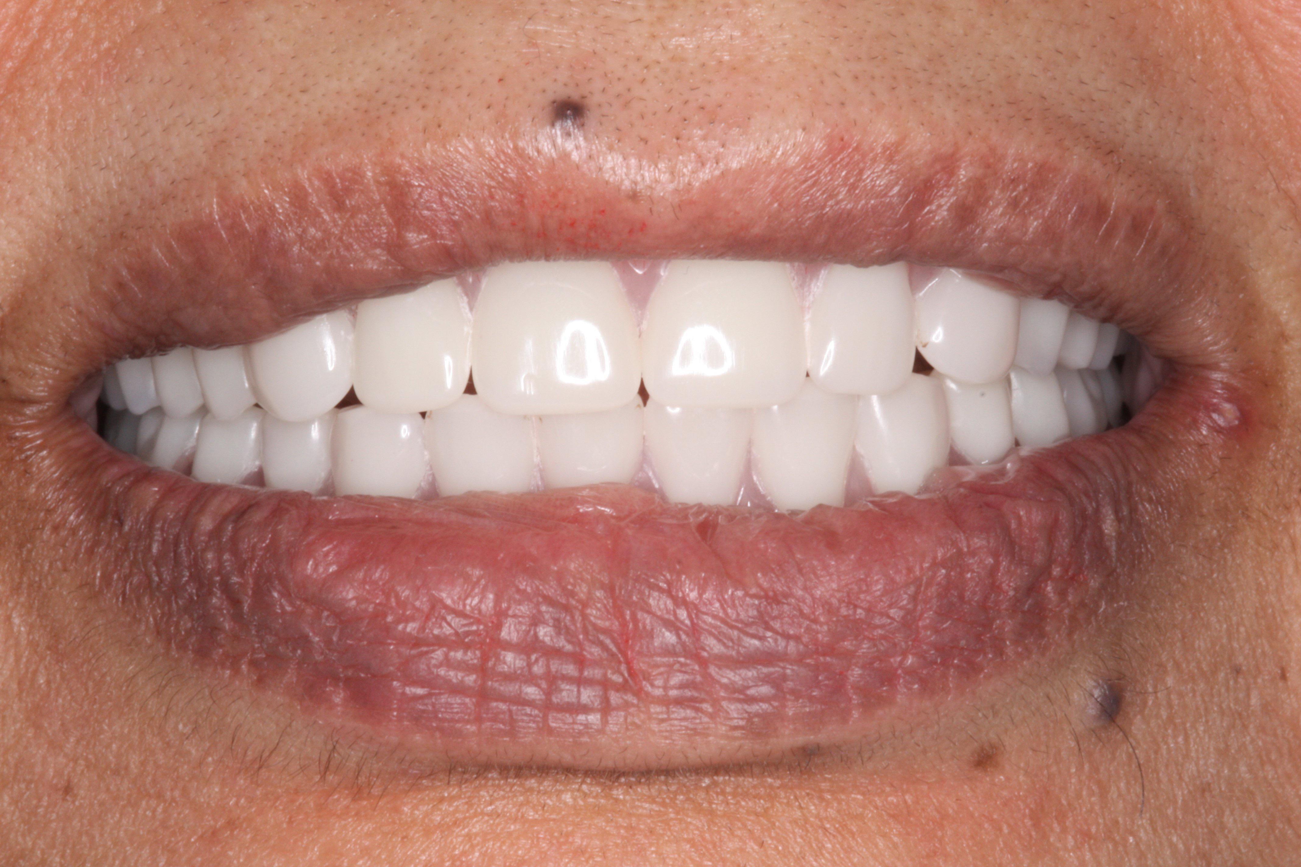 Cosmetic Dentures