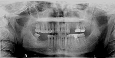 Before Radiograph of missing teeth