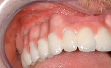 Photograph showing where the maxillary prosthesis meets the patients gingival. Note how much height had been lost.