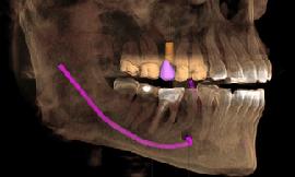 Sirona Cone Beam 3D CT Scanner