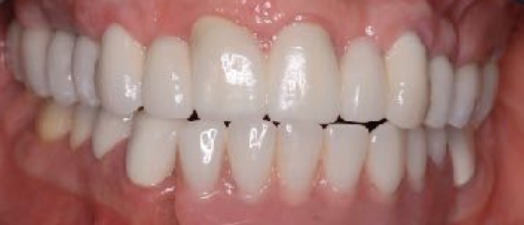 Non-Removable Implant Teeth and all teeth