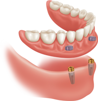 The Traditional Implant Clip-On Denture